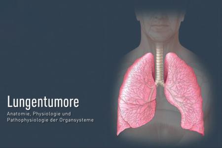 Lungentumore